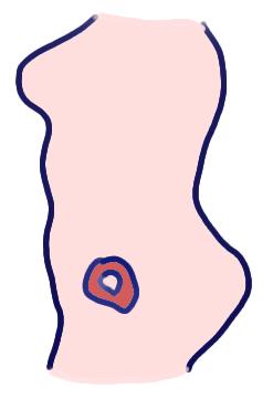 うずらの卵くらいの大きさの胎児