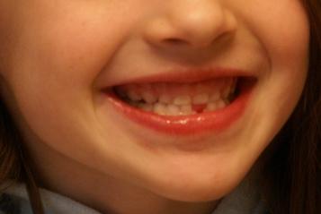 娘の歯のイメージ